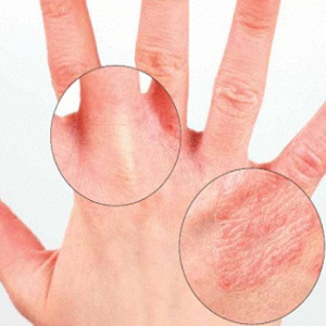 Kinds Of Warts On Hands